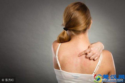 荨麻疹是怎么引起的?3个最常见病因,重在预防